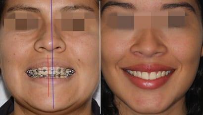 Lineas medias en ortodoncia