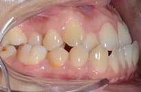 Mordida invertida en ortodoncia