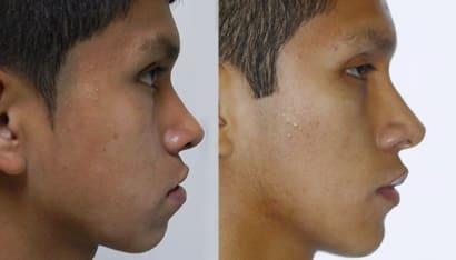 Protrusion Mandibular en ortodoncia