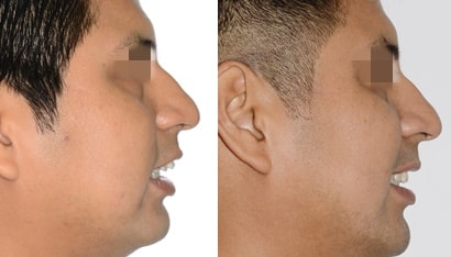 Protrusion maxilar en ortodoncia