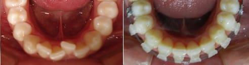 Stripping en ortodoncia