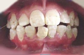 dientes salidos por mala ortodoncia