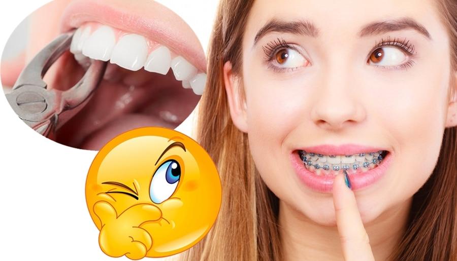 extraer o no extraer en ortodoncia