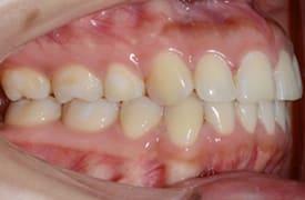 protusión dental resuelta