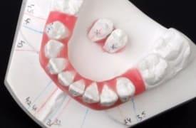 set up en ortodoncia