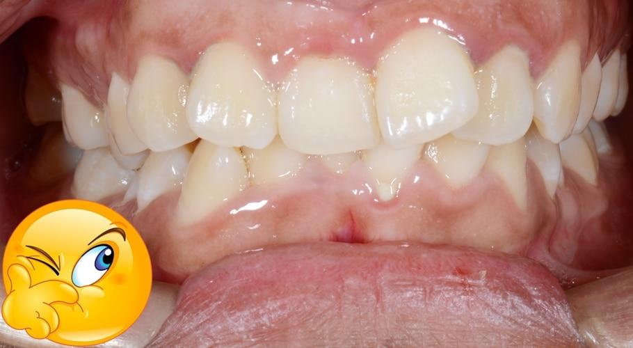necesito un tratamiento de ortodoncia
