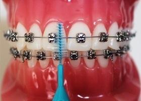 cepillo interproximal anterior en ortodoncia