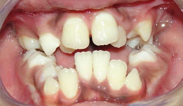 malposición dental severa