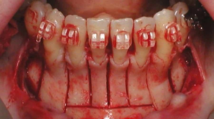 ortodoncia osteogénica acelerada
