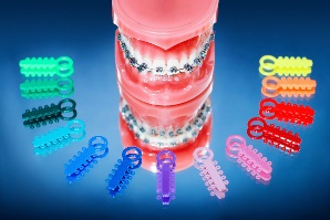 brackets con gomas de color