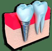 protesis-implantes-dentales