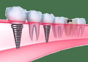 implantes dentales en lima peru