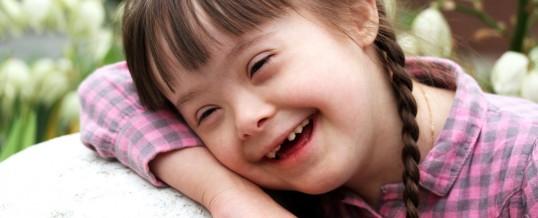 Cuidados bucales para pacientes con Síndrome de Down