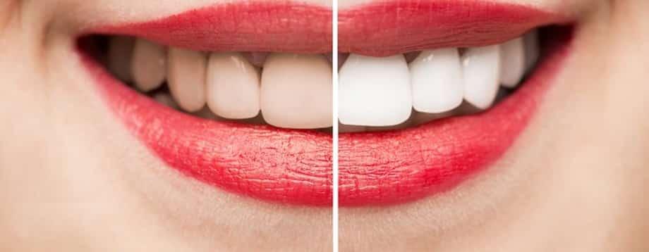 Blanqueamiento dental Perú