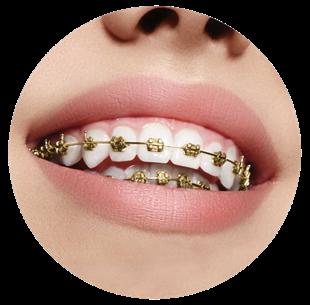 Brackets de oro en boca