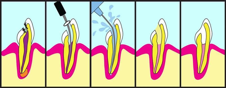 matar nervio endodoncia