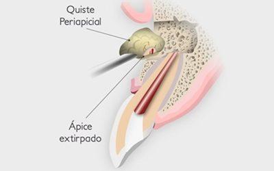 Apicectomia dental
