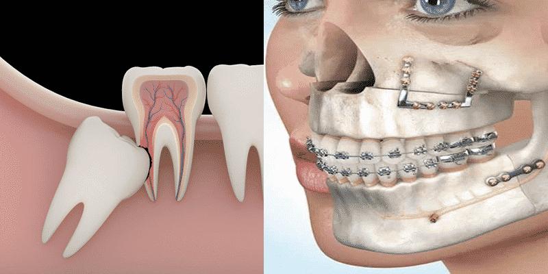 Cirugía oral vs maxilofacial