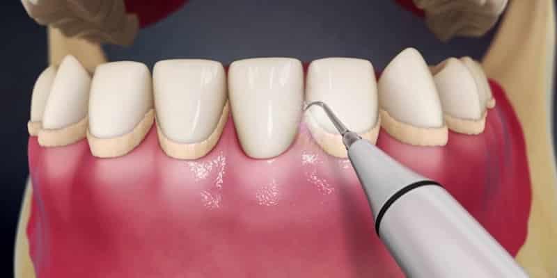 Tartrectomia dental