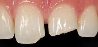 ¿Cuándo es necesario una corona dental?