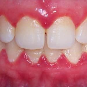 Tratamiento de gingivitis en Lima