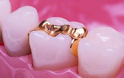 incrustaciones dentales lindas