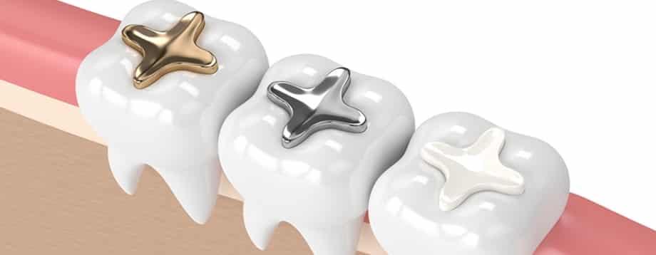 Incrustaciones dentales en lima