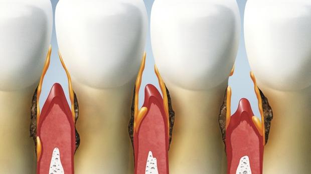 enfermedad de dientes y encias
