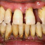 Tratamiento de la periodontitis