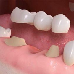 Puente dental protesis