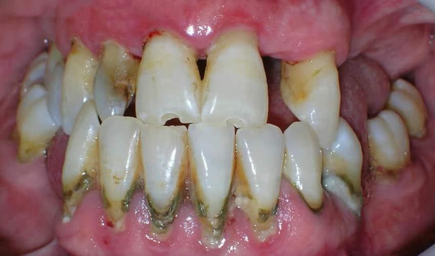 sintomas de la periodontitis