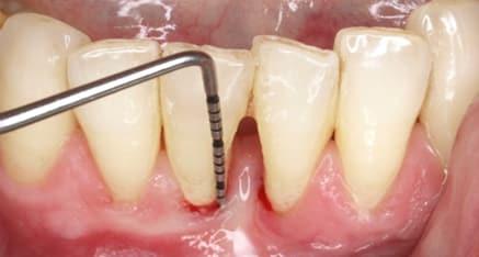 sondaje enfermedad periodontal