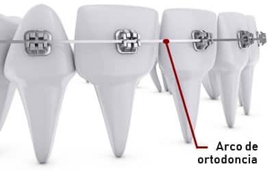 Arco NITI en ortodoncia