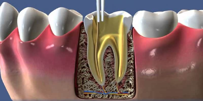Beneficios de la ENDODONCIA