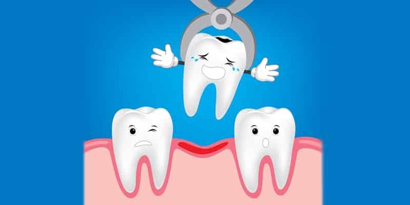 La temida extraccion dental
