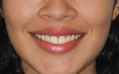 Oclusion y sonrisa balanceada
