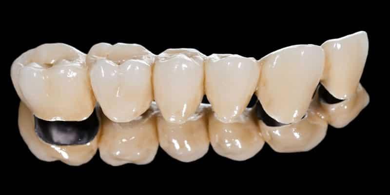 puente dental fijo