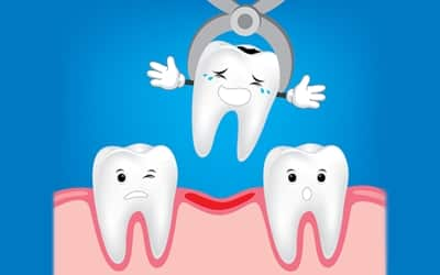 extracciones dental sin dolor