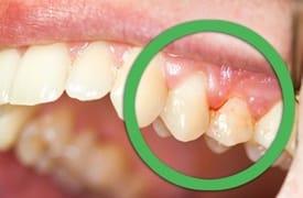 Proceso infeccioso dental