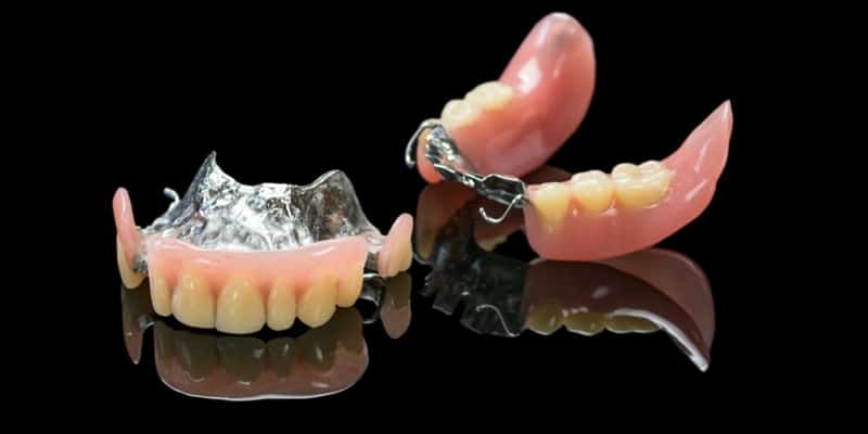 protesis dental removible base metalica