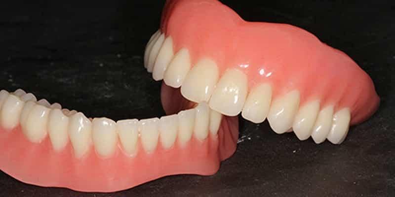protesis-dentales-totales