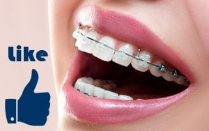 brackets biocompatibles