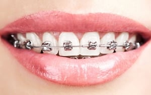 brackets metalicos autoligables