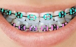 brackets metalicos de colores