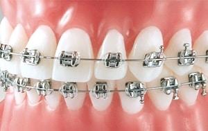 brackets metalicos de titanio
