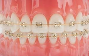 brackets metalicos dorados