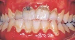 caries por placa dental