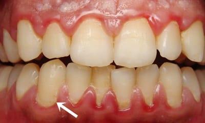 placa dental o biofilm