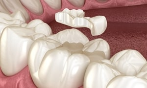 Incrustación-dental-ceramica