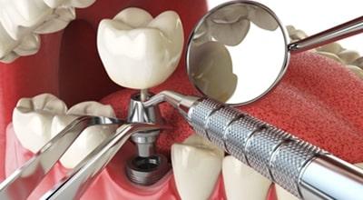 Mantenimiento profesional de implantes